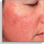 rosacea type1 facial-redness Temple Skincare Castle Hill