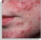 rosacea type2 bumps-pimples Temple Skincare Castle Hill