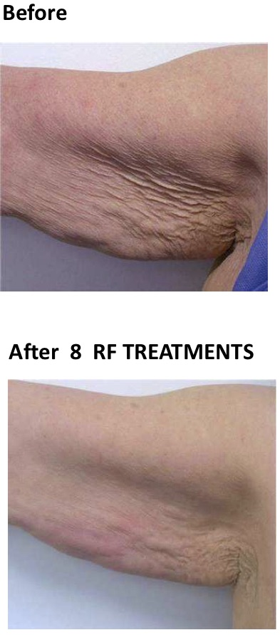 under arm skin tightening