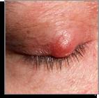 rosacea type 4 eye-irritation Temple Skincare Castle Hill