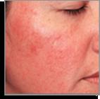 rosacea type1 facial-redness Temple Skincare Castle Hill