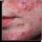 rosacea type2 bumps-pimples Temple Skincare Castle Hill