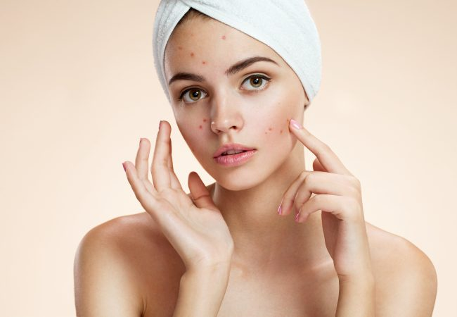 can facials solve acne