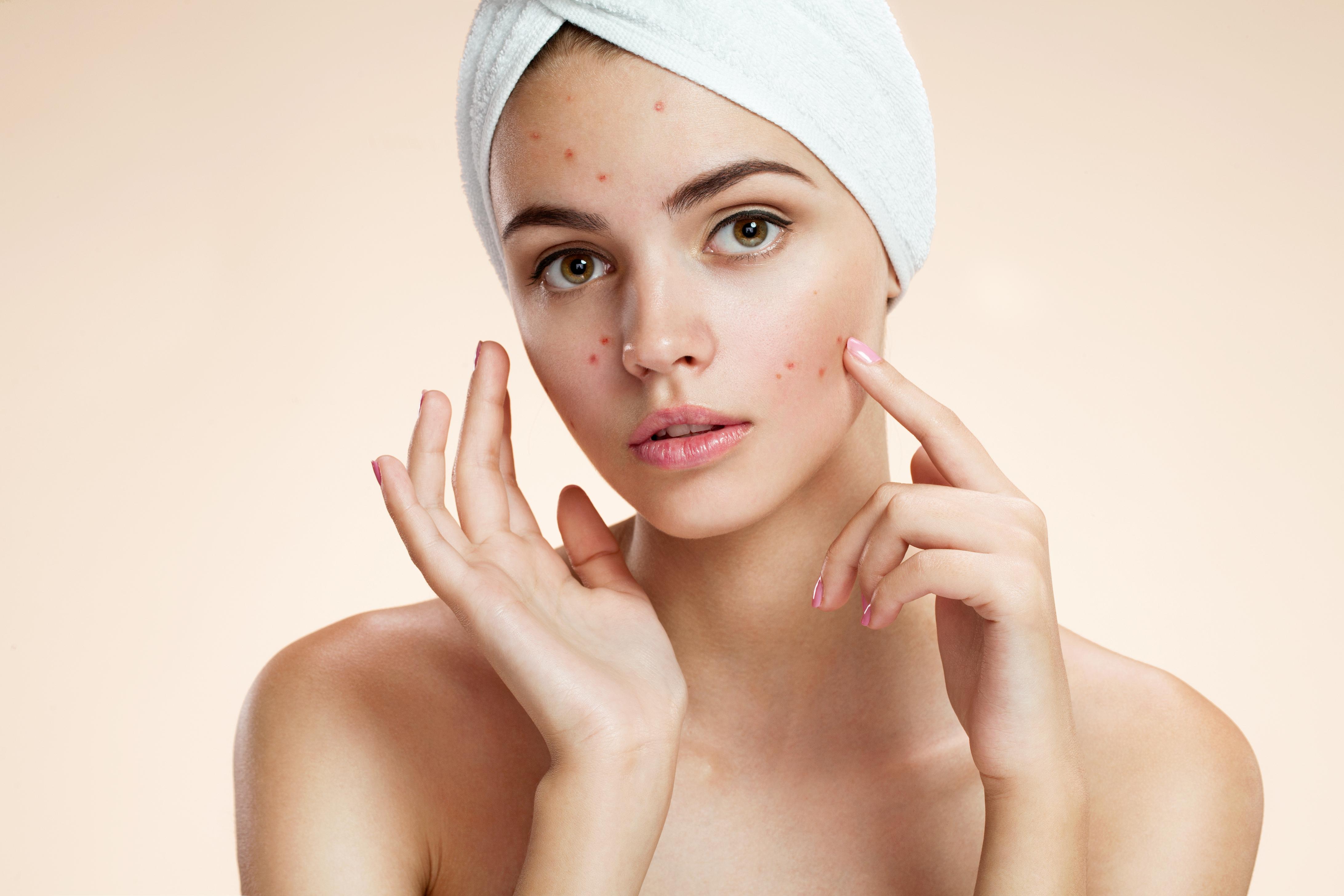 can facials solve acne