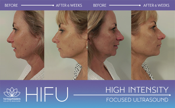 HIFU high Intensity lift
