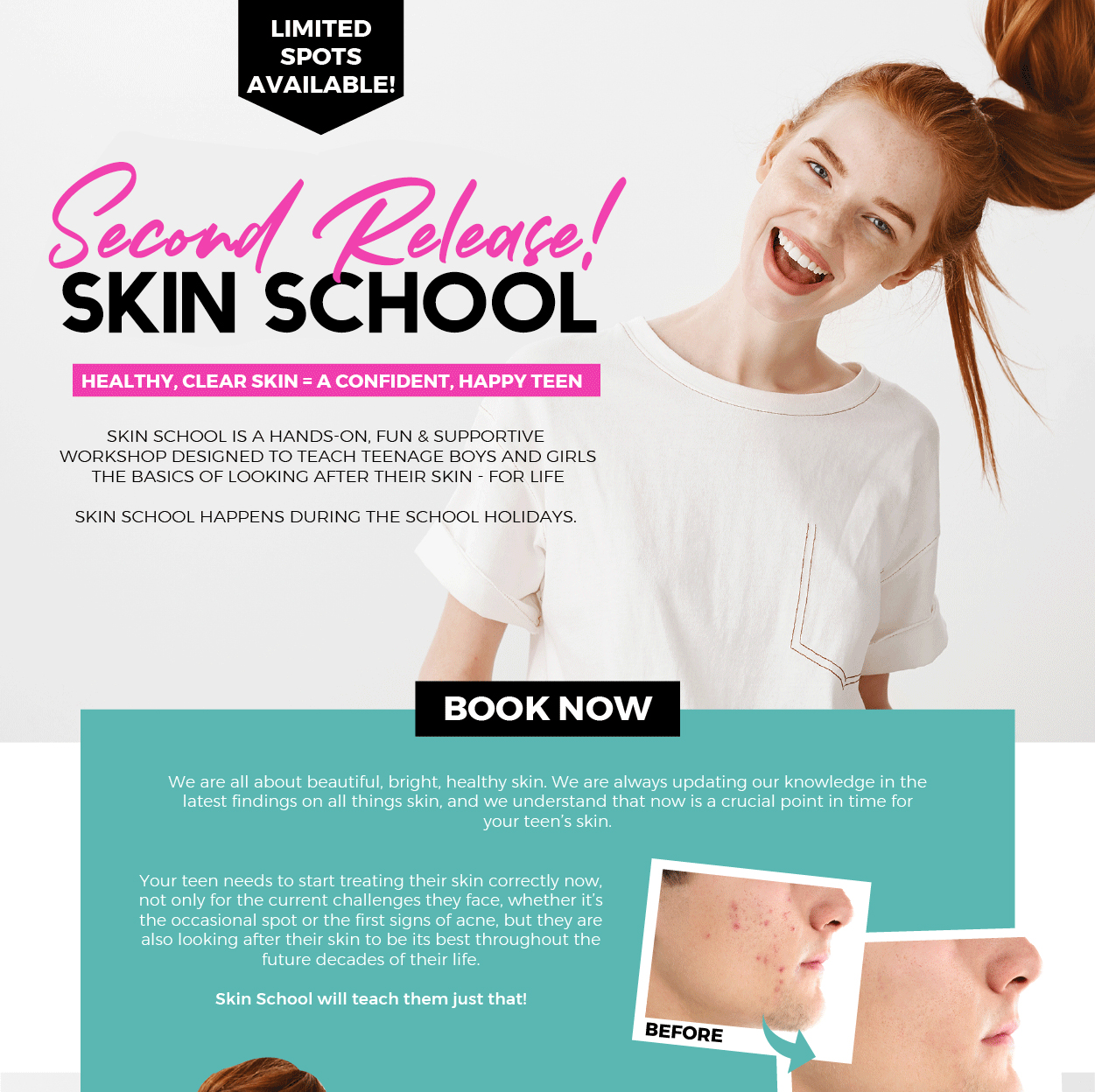 skin school second release promo page