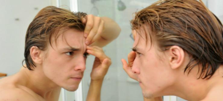 teen acne skincare
