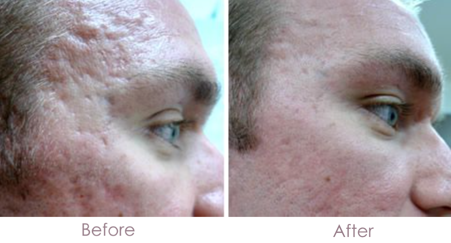 acne-scars-before-and-after-skin-needling
