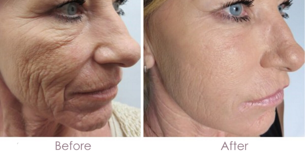 before-and-after-skin-needling