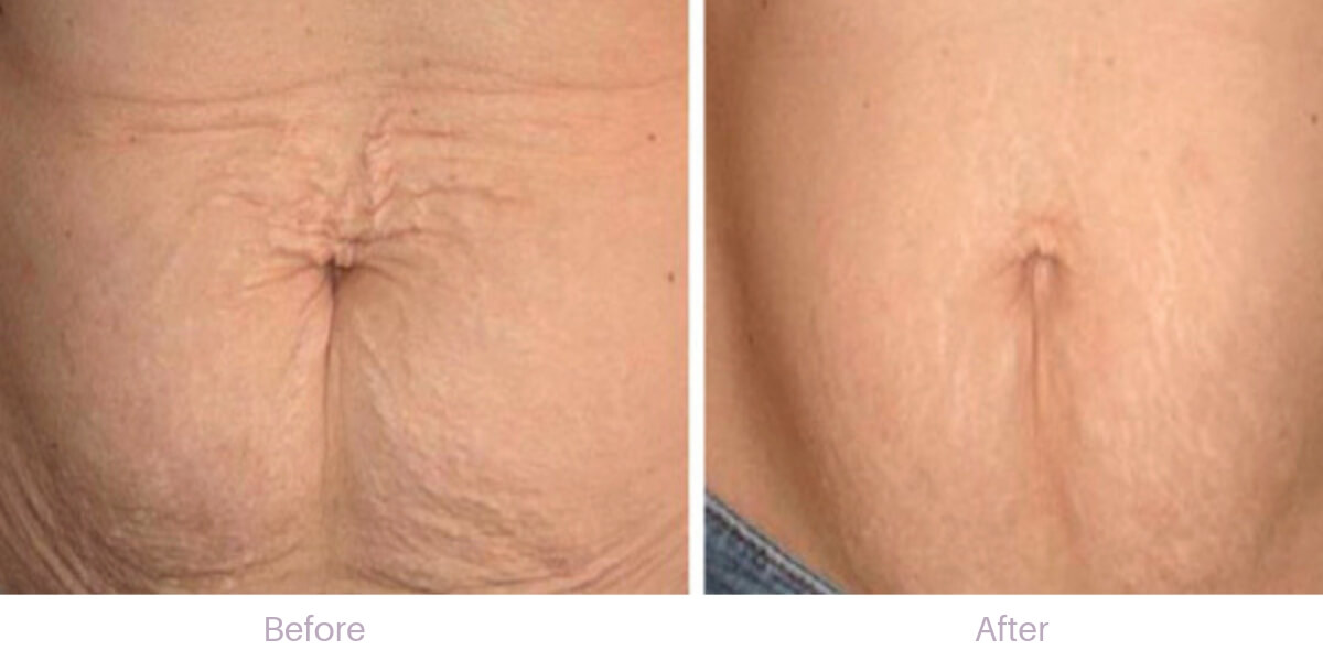 before-and-after-microneedling-stretch-marks-stomach