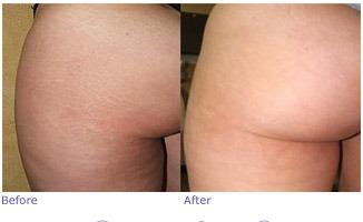 skin needling stretch marks