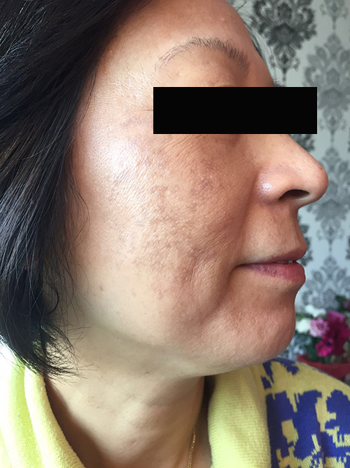 LED after pigmentation