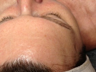 LED after skin rejuvenation