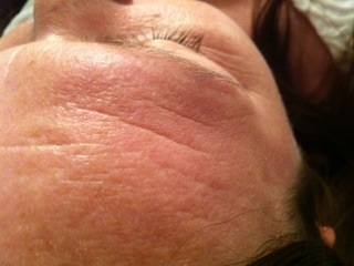 LED before skin rejuvenation