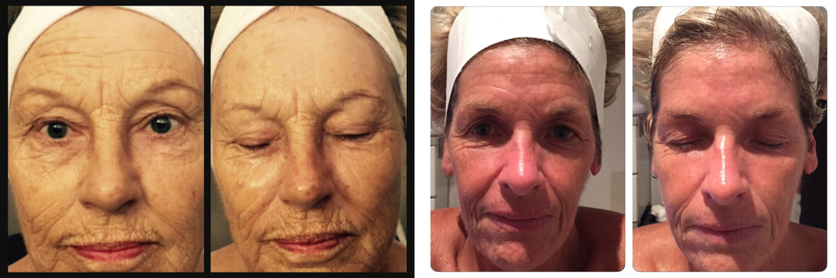 better than botox before and after