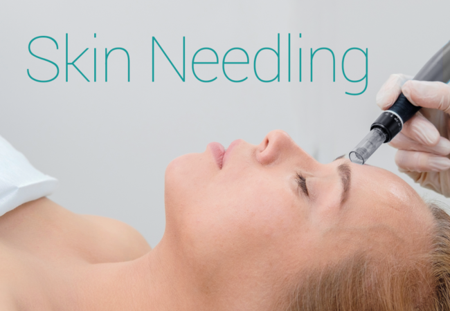 skin needling blog banner