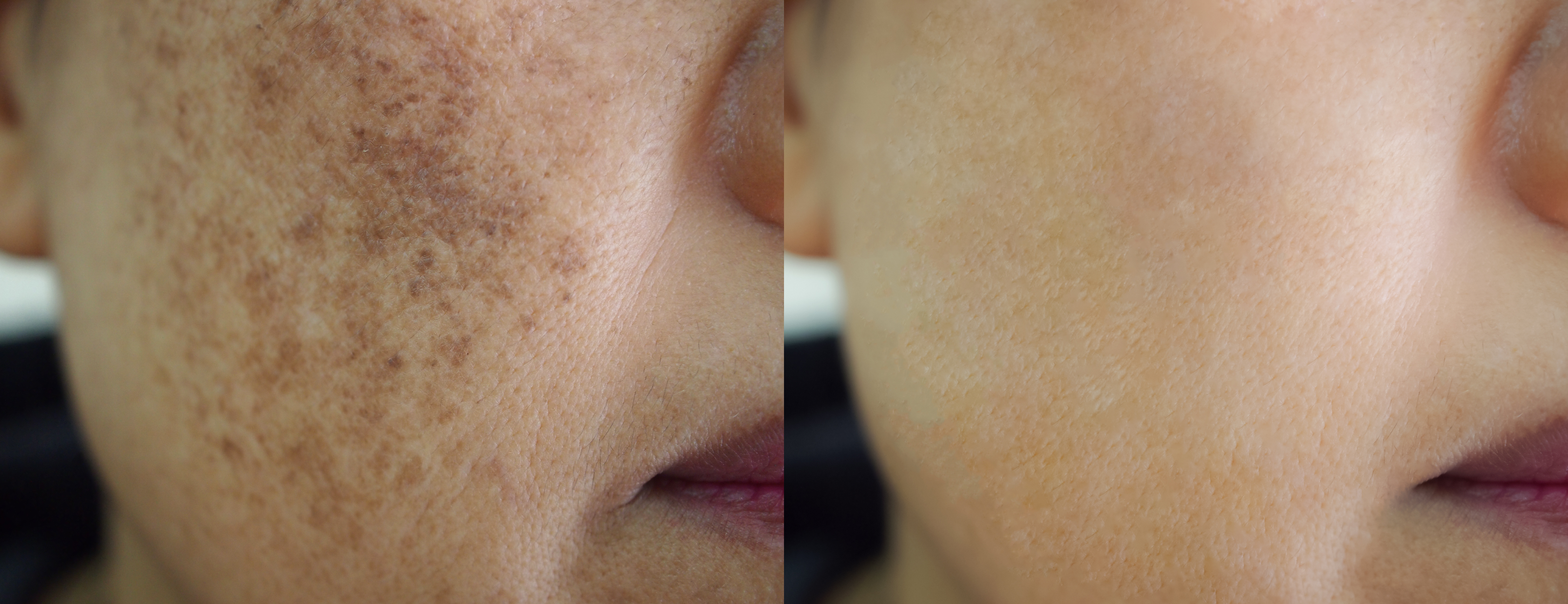 pigmentation before and after temple skincare