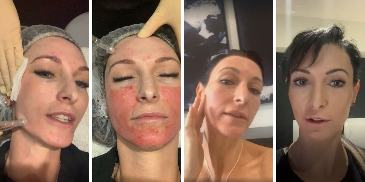 skin needling temple skincare