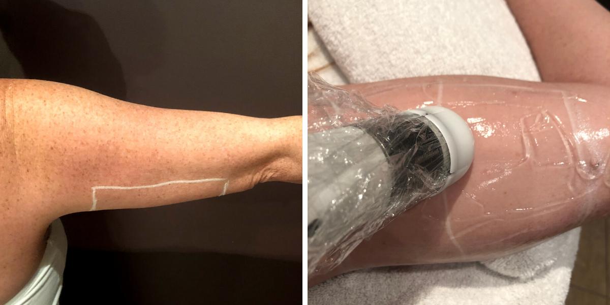 HIFU lifting arm Temple Skincare