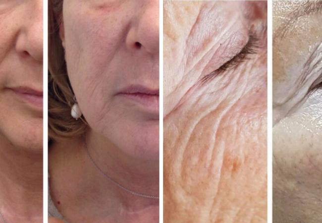 HIFU lifting Temple Skincare
