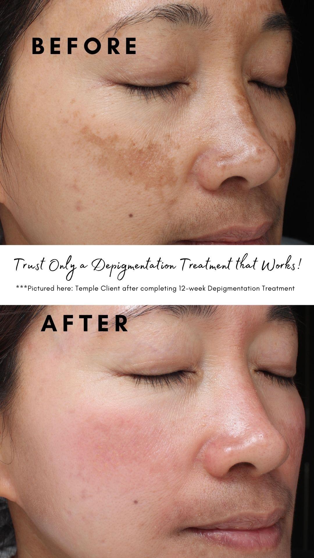 depigmentation-program-temple-skincare-mobile