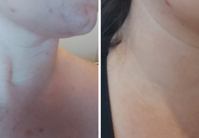 Hormonal Breakout to Clear Skin in 10 Days